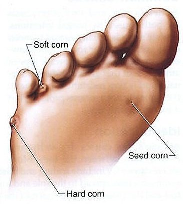 corns Corns on Feet Removal